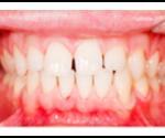 Professional Teeth Whitening Virginia