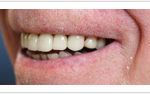 Porcelain Crowns Treatment
